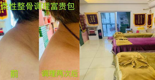 医师张玲:柔性整骨手法学习一年的临床应用案例