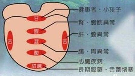潘保伟:精准舌诊 第10讲
