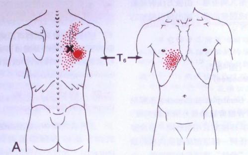 超微针刀和脉法针灸治疗肩胛内侧疼痛